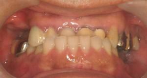 cone-crown-system-4266-pre-treat1