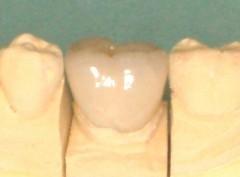 下顎大臼歯のメタルボンド。頬側(外側)の状態です。