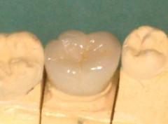 舌側(裏側)の状態です。金属はいっさい見えていません。
