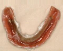下顎の修正後