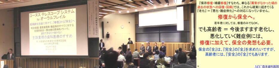 大阪歯科大学コーヌスセミナー